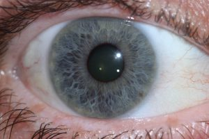 Close up photo of right eye
